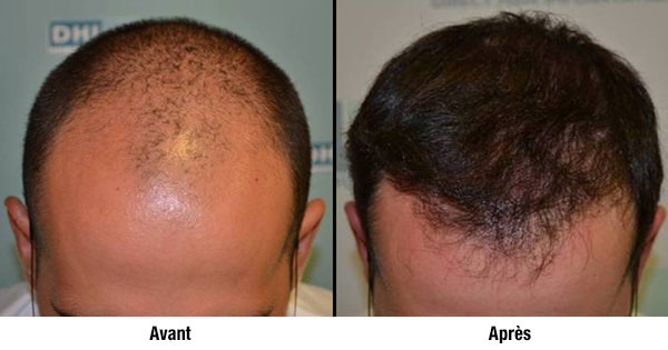 implant-capillaire_avant-apres_dhi-france.fr04