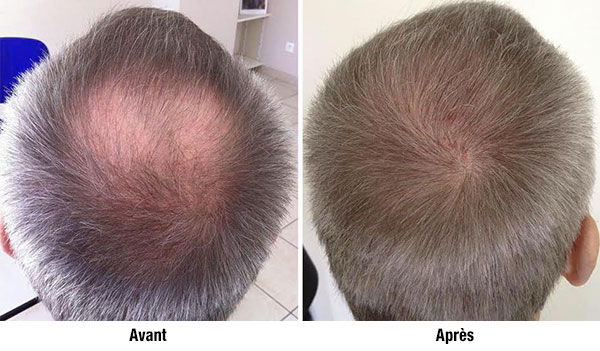 implant-capillaire_avant-apres_hairpalace.fr03
